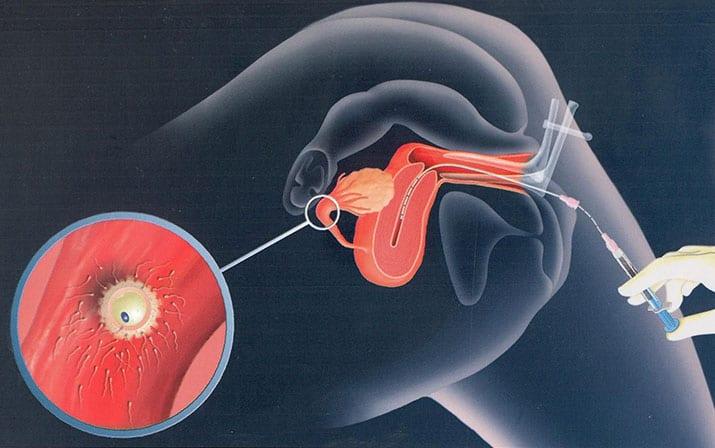 Tỉ lệ đậu thai ấn tượng nhờ phương pháp IUI tại BV Hồng Ngọc