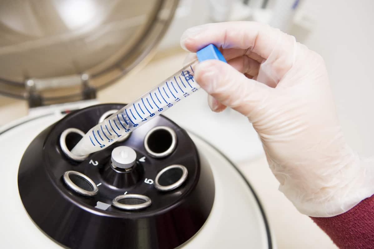 Vì sao điều trị vô sinh bằng IVF thất bại? 2