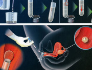 bơm tinh trùng vào buồng tử cung 4
