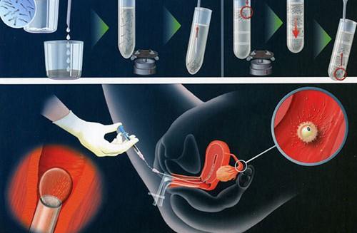 Yếu tố khiến bơm tinh trùng vào buồng tử cung thất bại