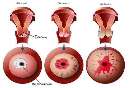 4 căn bệnh về cổ tử cung thường gặp ở phụ nữ