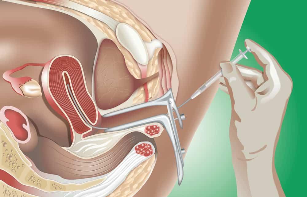 Kỹ thuật bơm tinh trùng vào buồng tử cung (IUI)