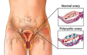 Hội chứng buồng trứng đa nang phổ biến ở phụ nữ