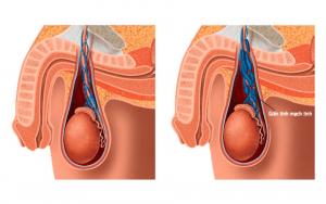 Giãn tĩnh mạch thừng tinh là nguyên nhân gây xệ tinh hoàn