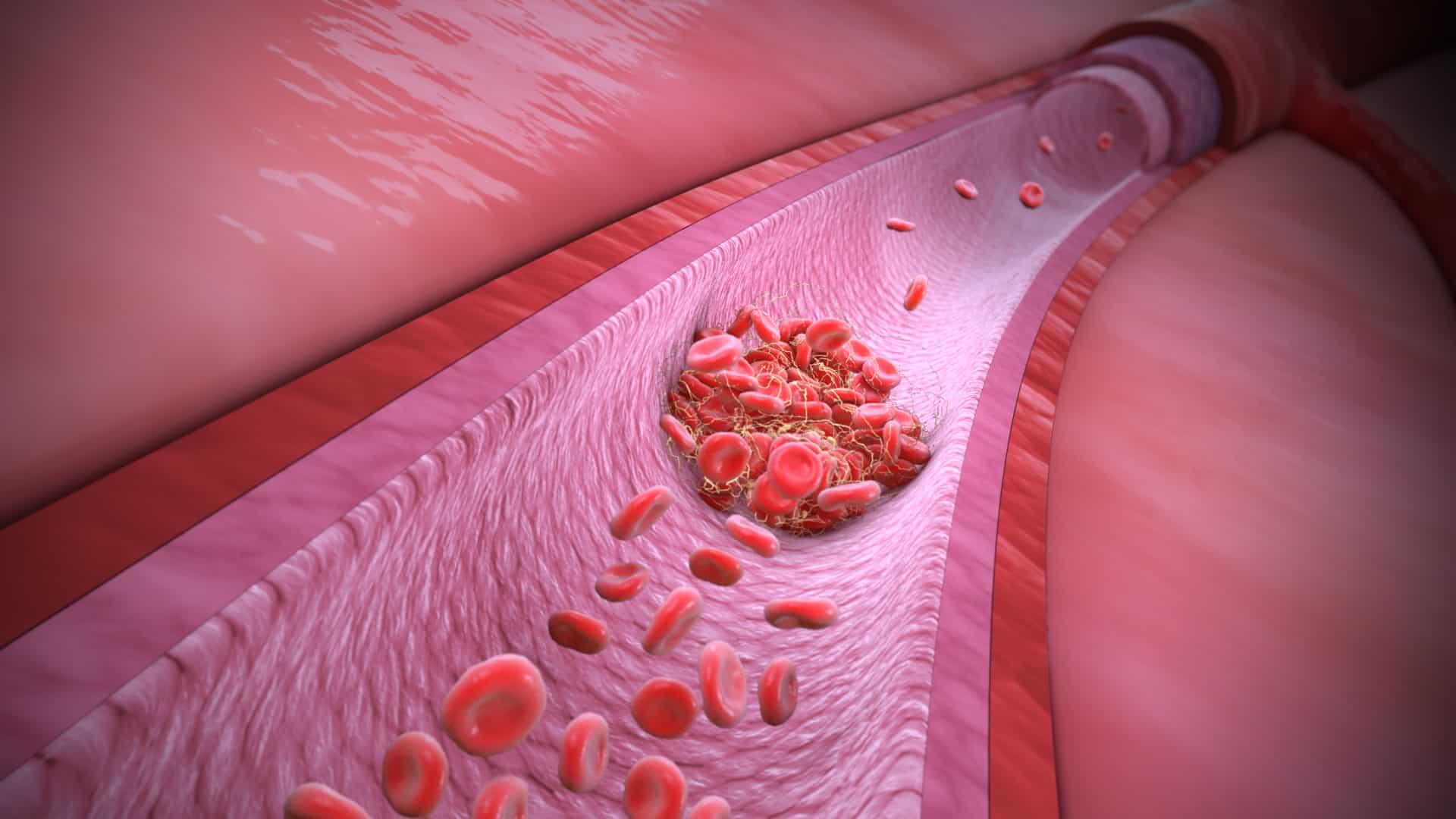 hội chứng đông máu