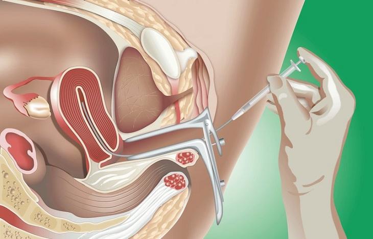 Buồng trứng đa nang nên IUI hay IVF còn phụ thuộc vào nhiều yếu tố