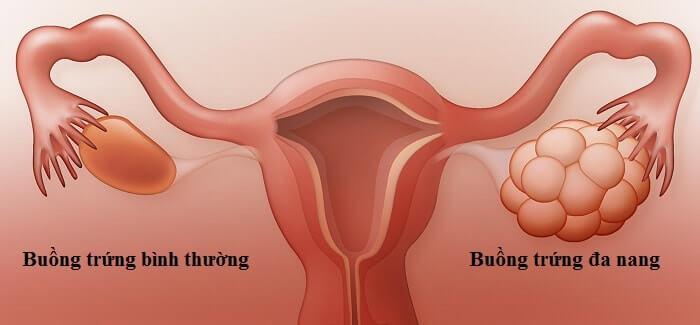 Buồng trứng đa nang có nên làm IUI hay IVF không là thắc mắc của nhiều chị em