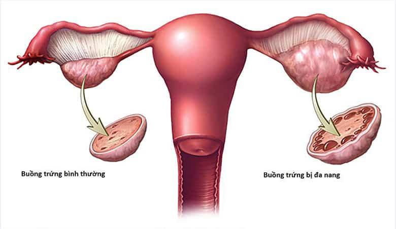 Điều trị buồng trứng đa nang như thế nào?