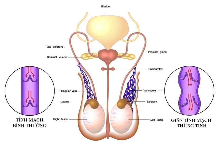 Giãn tĩnh mạch thừng tinh 2